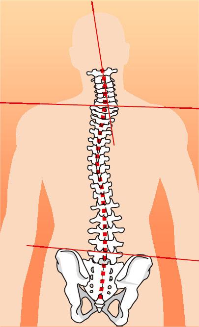 骨盤矯正を行う必要性